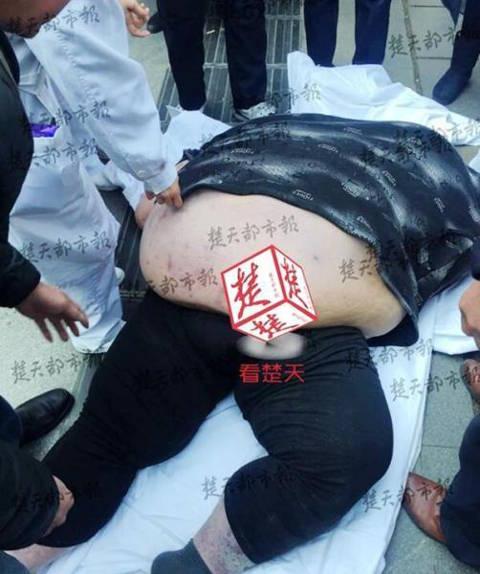 Thanh niên 2 tạ ngã ra đất, 20 người hì hục 2 tiếng đỡ dậy - 3