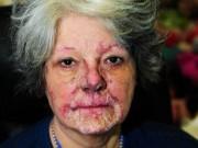 """Người phụ nữ 15 năm sống chung với bệnh """"mặt trời ăn da thịt"""""""