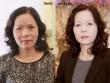 """Sự thật đằng sau phương pháp trị nám đang """"gây sốt"""" tại Hà thành"""