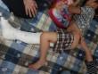 """Vụ HS bị tông gãy chân: Kết quả điều tra """"tố"""" hiệu trưởng gian dối"""