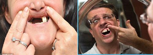 """Răng Implant 5D – """"sự đột biến"""" của Nha khoa thẩm mỹ - 1"""