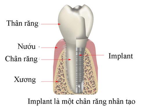 """Răng Implant 5D – """"sự đột biến"""" của Nha khoa thẩm mỹ - 2"""