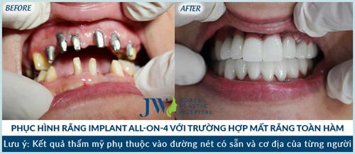 """Răng Implant 5D – """"sự đột biến"""" của Nha khoa thẩm mỹ - 5"""