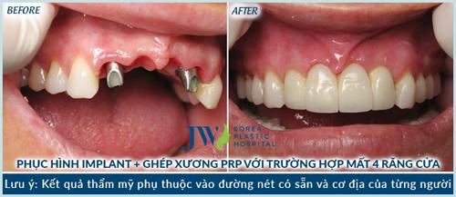 """Răng Implant 5D – """"sự đột biến"""" của Nha khoa thẩm mỹ - 6"""