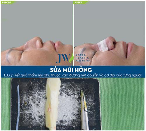 """Phẫu thuật miễn phí với """"cha đẻ"""" của phương pháp nâng mũi S-Line - 4"""