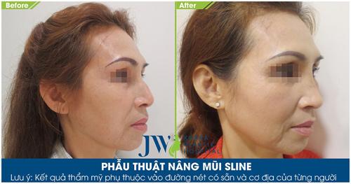 """Phẫu thuật miễn phí với """"cha đẻ"""" của phương pháp nâng mũi S-Line - 6"""
