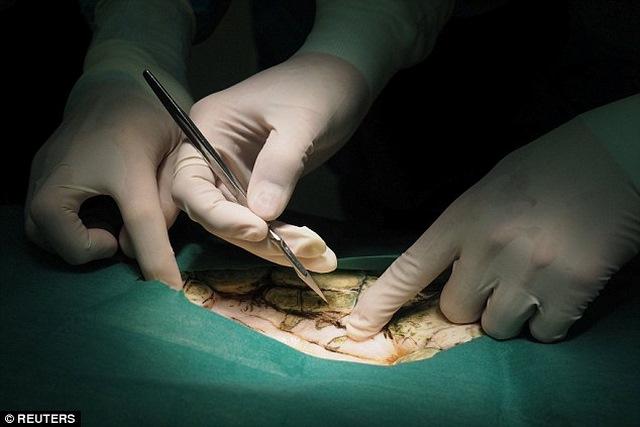 Mổ lấy gần nghìn đồng xu trong bụng rùa biển Thái Lan - 2