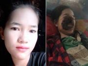 Bạn trẻ - Cuộc sống - Cô gái xinh đẹp bị hoại tử gần hết mặt sau khi nhổ răng