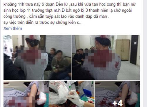 Nữ sinh bị đánh rách đầu, gãy tay trên đường đi học về - 1