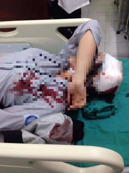 Hà Nội: Nữ sinh nghi bị bạn đánh gãy tay, ngất xỉu - 1