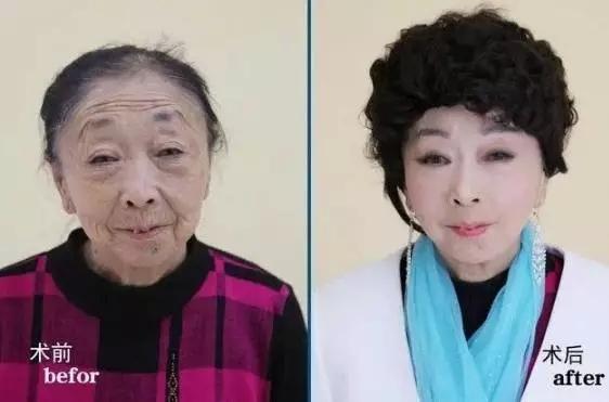 """Bà lão 71 tuổi căng mặt để xứng với """"phi công trẻ"""" - 6"""