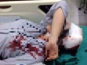 Giáo dục - du học - Hà Nội: Nữ sinh nghi bị bạn đánh gãy tay, ngất xỉu