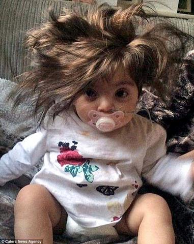 Em bé sơ sinh tóc dài, rậm chưa từng thấy - 3