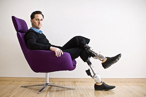Người đàn ông khuyết tật chế tạo ra đôi chân robot đa năng - 1