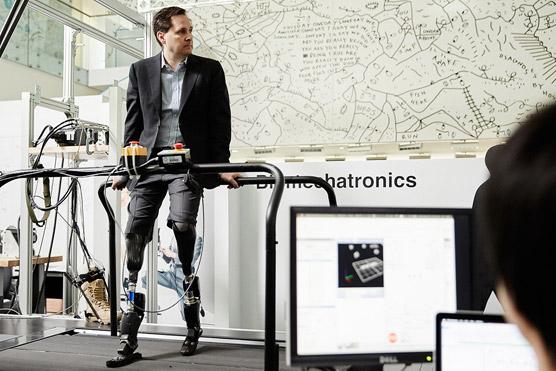 Người đàn ông khuyết tật chế tạo ra đôi chân robot đa năng - 3
