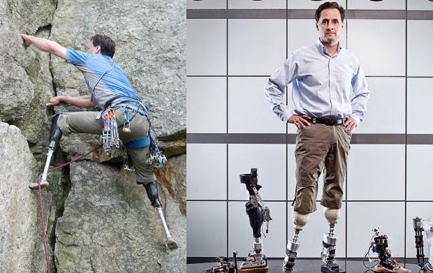 Người đàn ông khuyết tật chế tạo ra đôi chân robot đa năng - 4