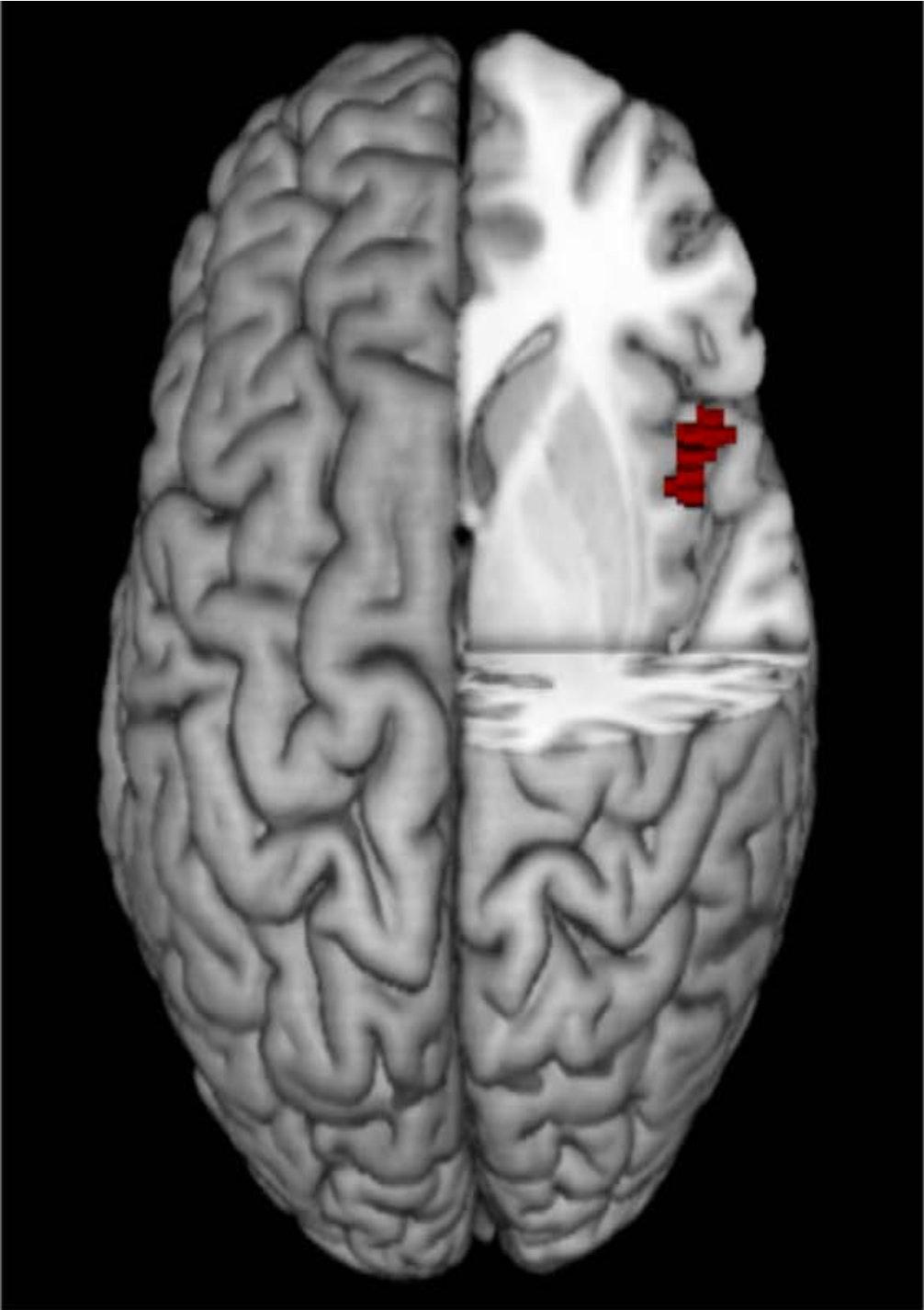 """Phát hiện nơi quyết định """"máu anh hùng"""" trong não người - 2"""