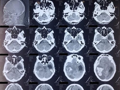 Ngã đập đầu dù nhẹ hay nặng cũng có thể nguy hiểm tính mạng - 2