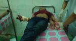 3 nữ nhân viên tiệm massage bị chém - 1