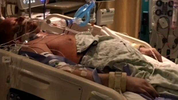 Vào viện vì đau bụng, ra viện không còn chân tay - 2