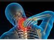Mách dân văn phòng cách chữa đau nhức cổ, vai, phòng ngừa tái phát