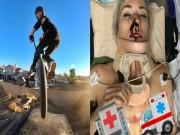 Thể thao - Nữ VĐV xinh đẹp gặp tai nạn thương tâm: Đổ máu & suýt mất mạng