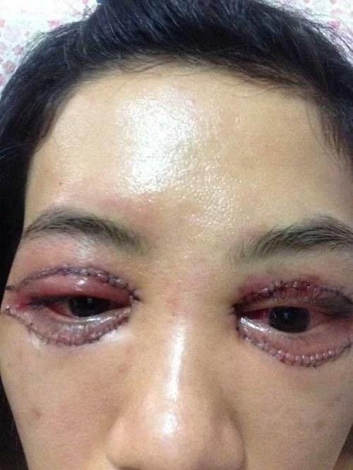 Cắt mí mắt hỏng hóc khiến có cô nàng hóa mặt hề - 1