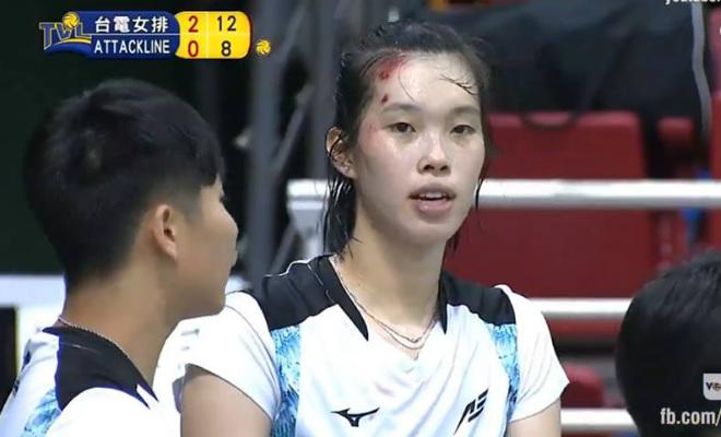 """Thanh Thúy 1m93 ngã """"vỡ đầu"""", vẫn có 177 điểm số 1 ở giải ngoại - 1"""