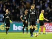 Real gặp nạn: Ronaldo  chân gỗ , Bale lên đồng, Zidane vẫn lo ngay ngáy