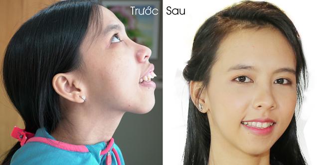 Diện mạo mới của cô gái Tây Ninh khiến Ngân Quỳnh rơi lệ - 4