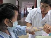 Bệnh thủy đậu: Triệu chứng và cách phòng tránh hiệu quả
