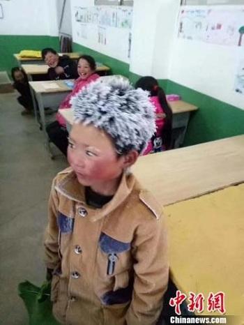 Đằng sau chuyện cậu bé TQ bị đóng băng toàn bộ tóc vì giá rét - 1