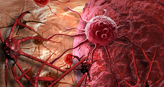 8 quan niệm sai lầm về bệnh ung thư cần từ bỏ ngay - 3