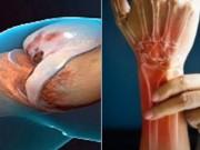 Viêm xương khớp thoái hóa gây đau đớn: Bệnh nhân đồng loạt đón nhận tin vui!