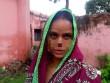 Tâm sự đẫm nước mắt của người vợ bị chồng dùng dao cắt đứt mũi vì 17 triệu