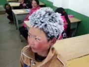 Cậu bé TQ đầu đóng băng chỉ nhận được 1/62 tiền quyên góp