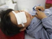Trẻ nghịch dao khiến mắt bạn bị bổ đôi, tổn thương nghiêm trọng