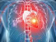 Dấu hiệu nhận biết cơn đau tim sắp ập đến