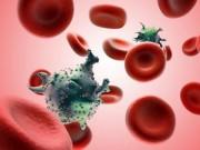 Sức khỏe đời sống - Muốn ung thư máu không gõ cửa, bạn nhất định phải biết những điều sau