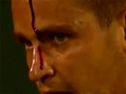 Điên rồ tennis: Thua điểm, cầm vợt tự đập đầu chảy máu