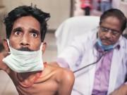 Bác sĩ rởm ở Ấn Độ truyền HIV cho 33 người