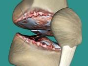 Đau nhức xương khớp dùng nhiều cách không khỏi: Mẹo nhỏ này sẽ gây bất ngờ!