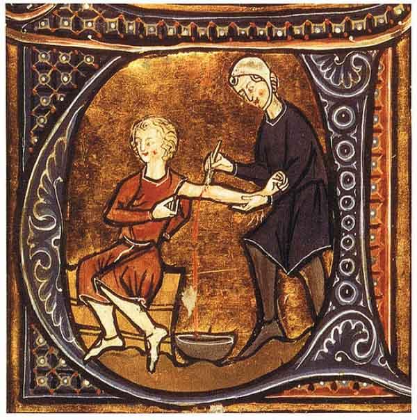 Sởn gai ốc với 8 phương pháp chữa bệnh kỳ dị của người xưa - 4