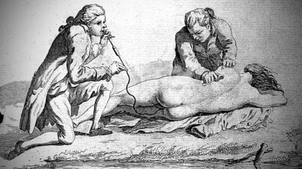 Sởn gai ốc với 8 phương pháp chữa bệnh kỳ dị của người xưa - 1