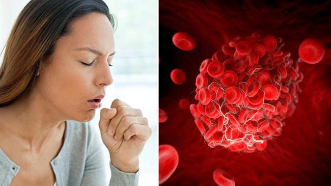 Dấu hiệu đơn giản cảnh báo cơ thể đang gặp nguy hiểm vì có cục máu đông - 3