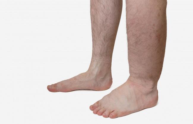 Dấu hiệu đơn giản cảnh báo cơ thể đang gặp nguy hiểm vì có cục máu đông - 6