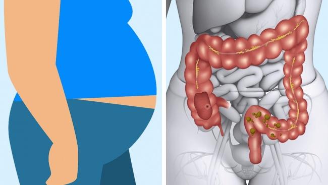 Dấu hiệu cảnh báo cơ thể đang gặp nguy hiểm vì ăn thịt - 9
