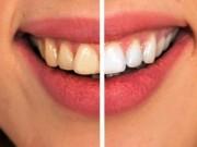 8 cách đơn giản đẩy lùi bệnh sâu răng một cách tự nhiên nhất