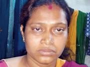 Ấn Độ: Chồng cắt trộm thận, 2 năm sau vợ mới biết
