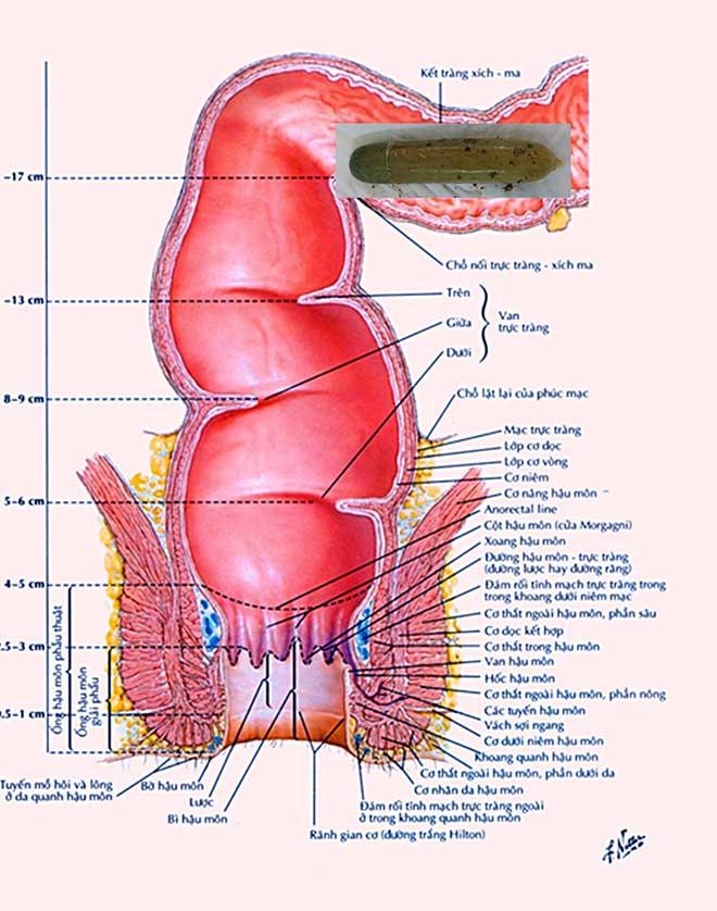 Nam bệnh nhân bị lọt cả quả dưa leo vào bụng - 1
